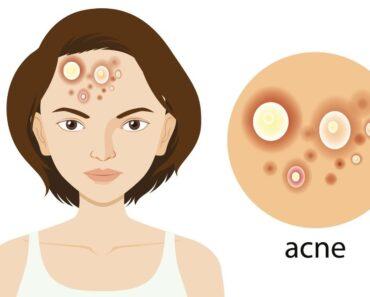 Los 10 mejores alimentos para evitar el acné y los puntos negros