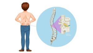 Dolor de espalda: causas y tratamiento