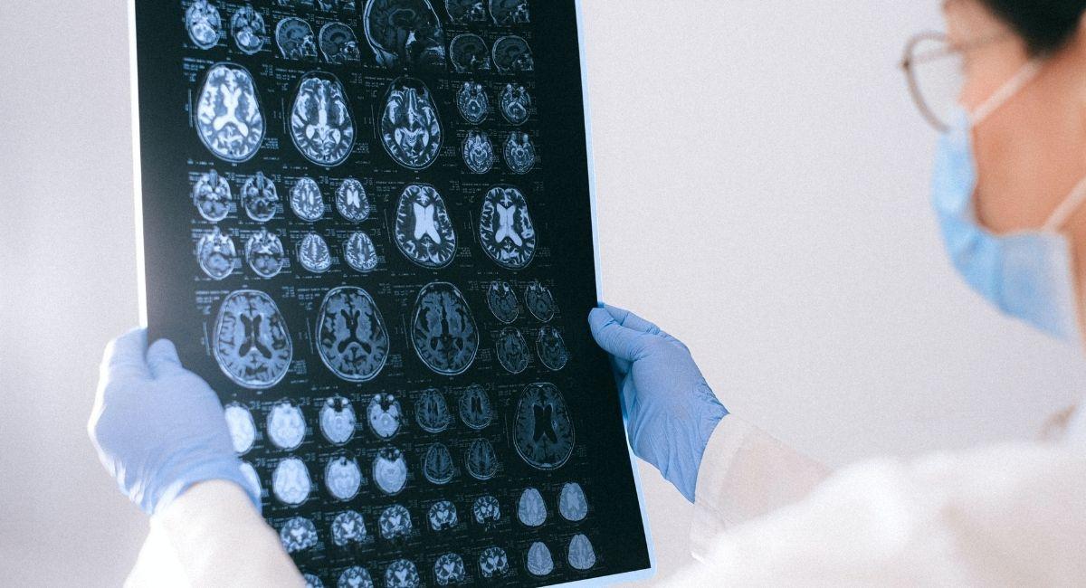 Guía de un aneurisma cerebral