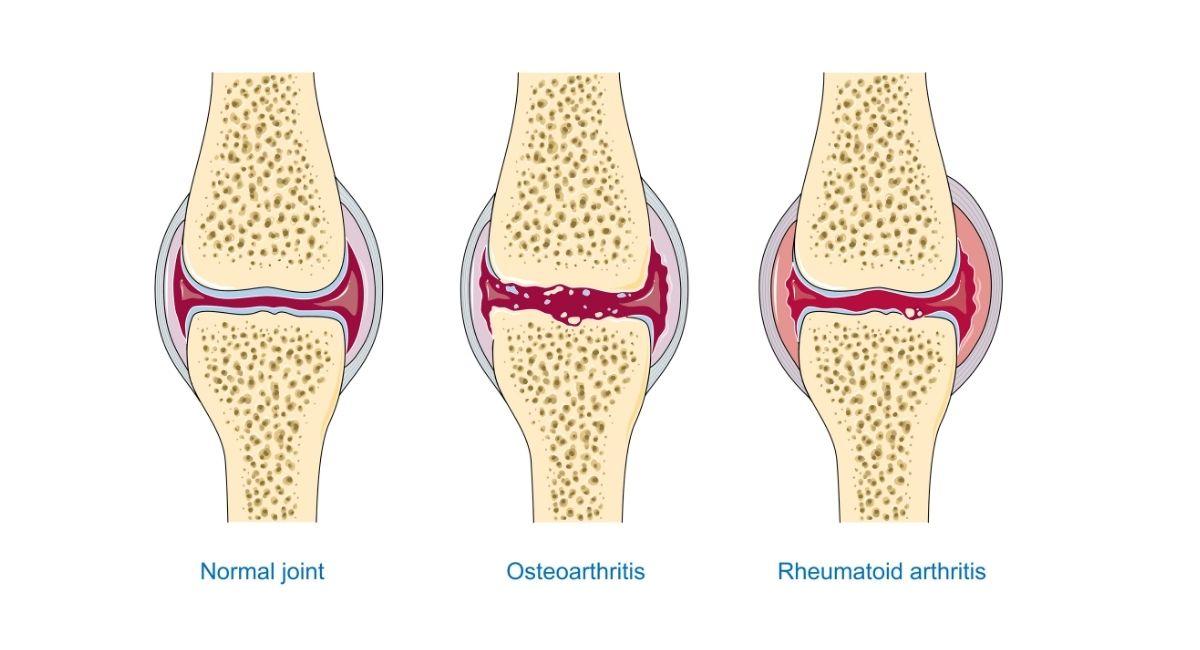 Hábitos saludables para la artritis reumatoide