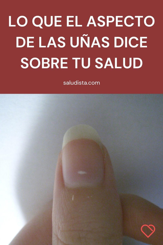 Lo que el aspecto de las uñas dice sobre tu salud