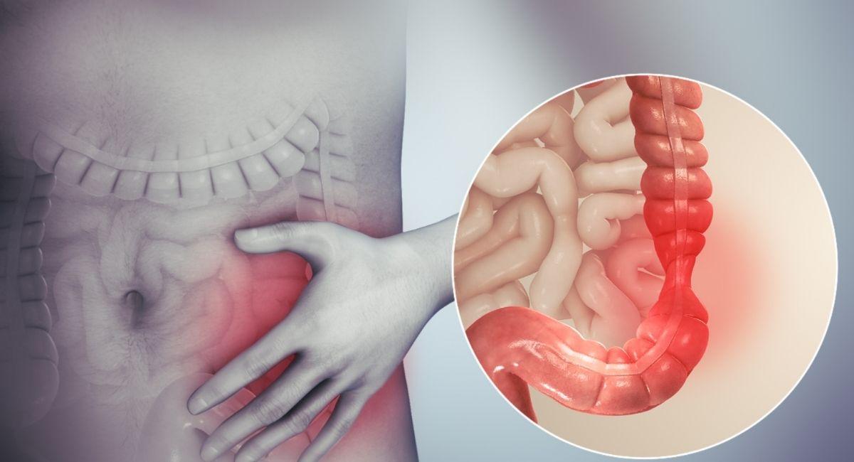 Causas y factores de riesgo del síndrome del intestino irritable (SII)