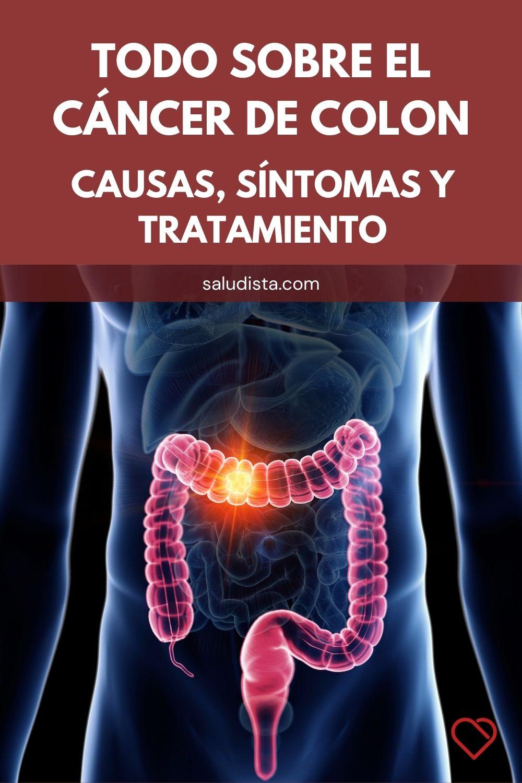 Todo sobre el cáncer de colon: causas, síntomas y tratamiento