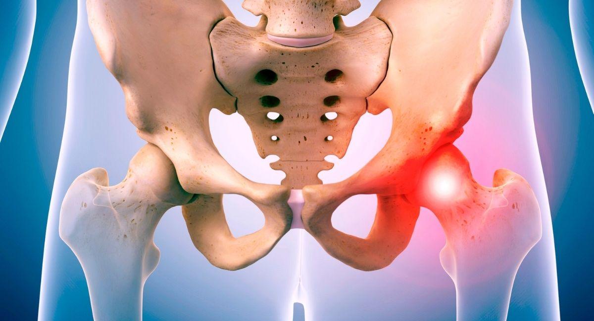 dolor 8 Razones del dolor de cadera (y tratamientos)de cadera