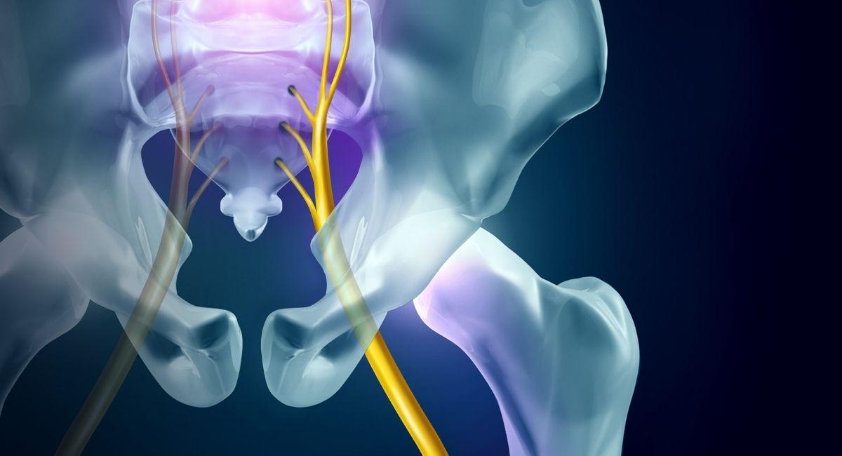 12 Formas de aliviar el dolor del nervio ciático