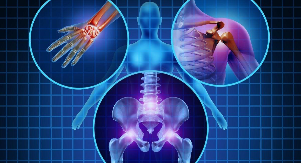 11 Cosas que dañan la salud de los huesos