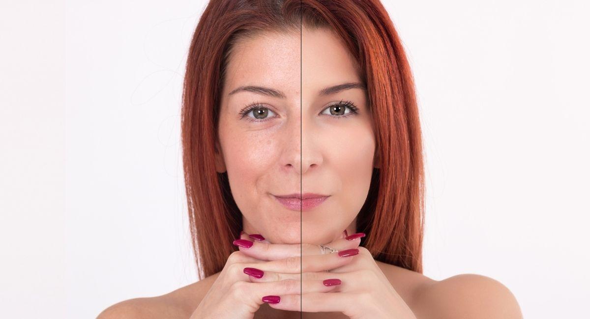 Colágeno: ¿Puede realmente ayudar con la piel y las articulaciones?