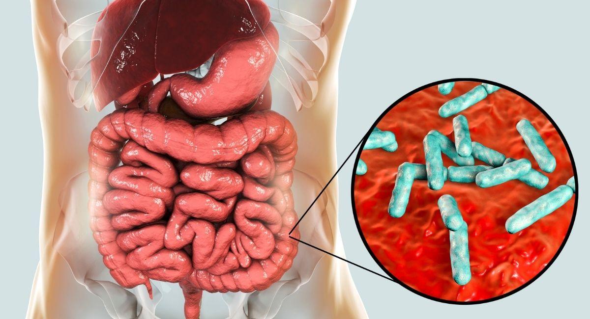 "¿Consume alimentos que dañan su ""microbioma""?"