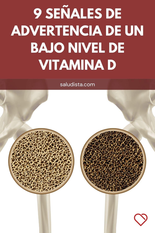 9 Señales de advertencia de un bajo nivel de vitamina D