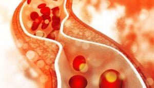 Los vegetarianos tienen mejor colesterol que los consumidores de carne