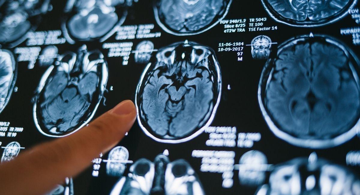1 de cada 3 tiene problemas neurológicos y psiquiátricos después del COVID-19