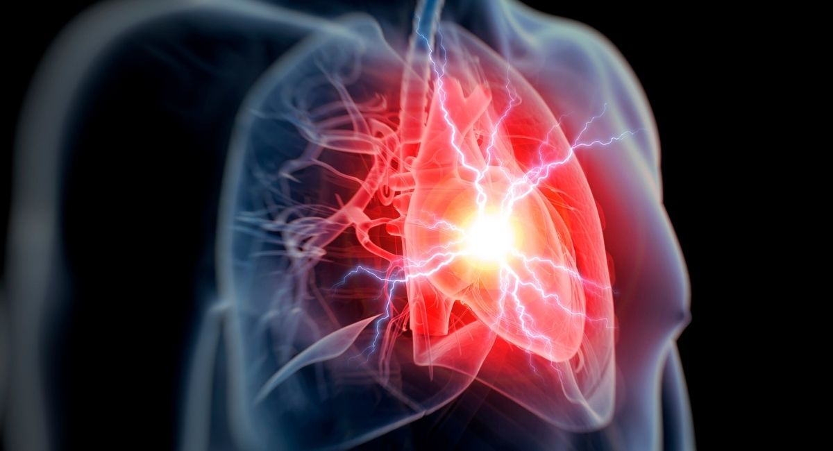 7 sencillos pasos para evitar un ataque al corazón