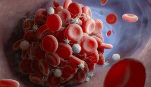 Síntomas de los coágulos de sangre: Cómo saber si tienes uno