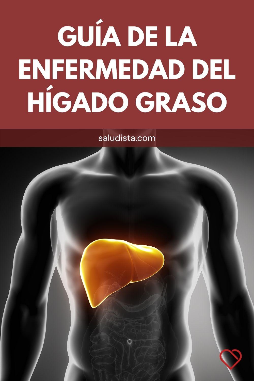 Guía de la enfermedad del hígado graso