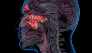 Sentido del olfato tras COVID-19: se recupera capacidad olfativa