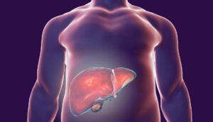 9 Síntomas de problemas hepáticos