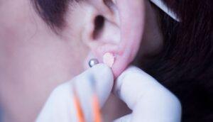 Semillas para auriculoterapia: Lo que hay que saber