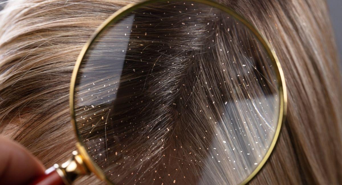 13 Datos sobre la caspa que quizás no sabías